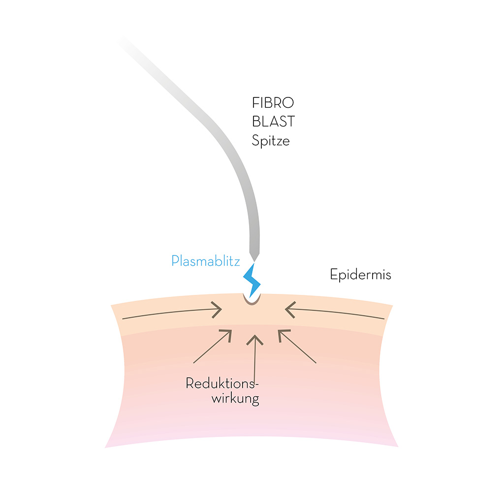 ricare-fibroblast-funktionsweise